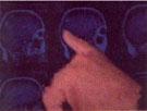 tumeur cérébrale